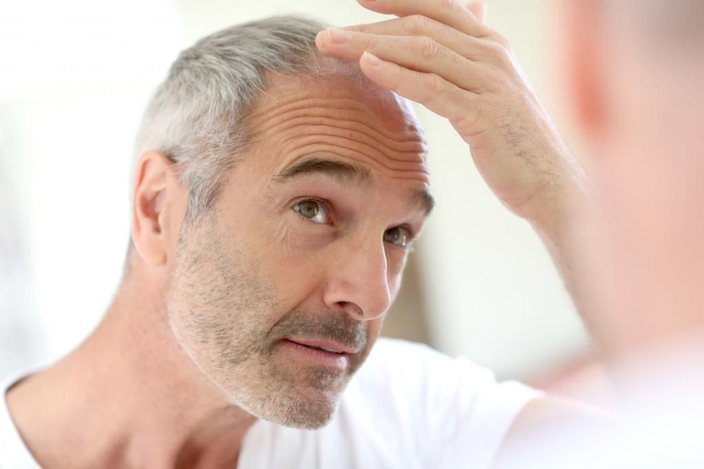 Haarausfall (Ästhetische Medizin)